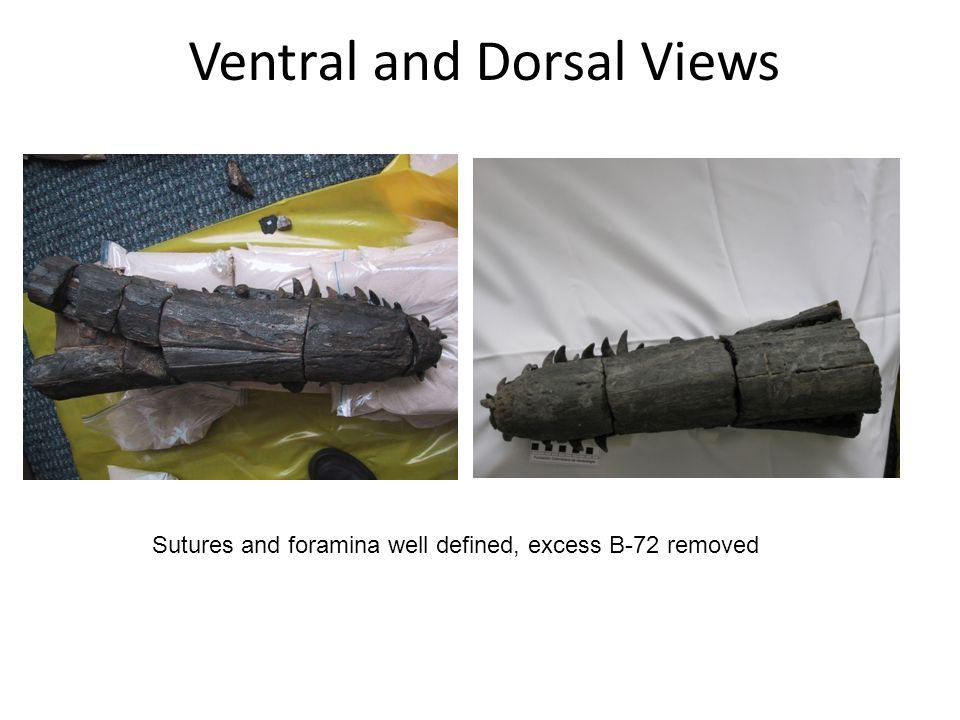 Ventral and Dorsal Views Sutures and foramina well defined, excess B-72 removed