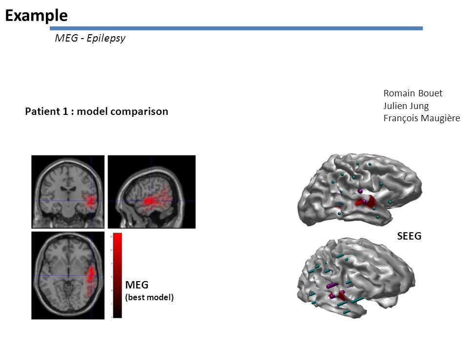 Patient 1 : model comparison MEG (best model) SEEG Example Romain Bouet Julien Jung François Maugière MEG - Epilepsy
