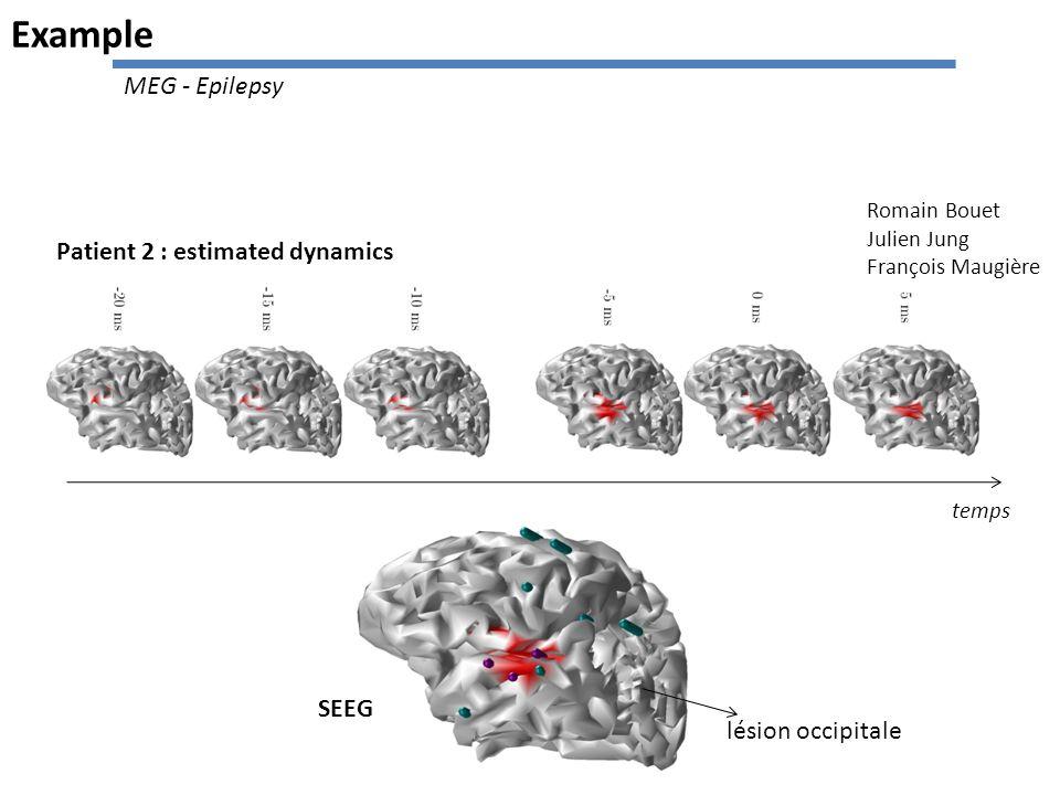 Patient 2 : estimated dynamics temps SEEG lésion occipitale Romain Bouet Julien Jung François Maugière Example MEG - Epilepsy