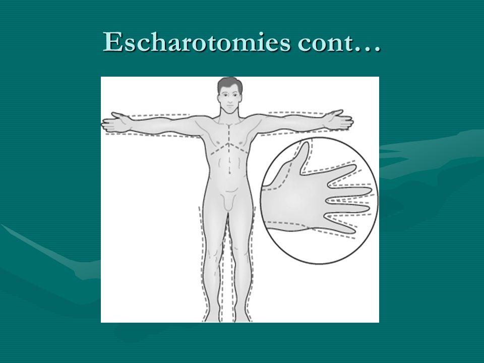 Escharotomies cont…