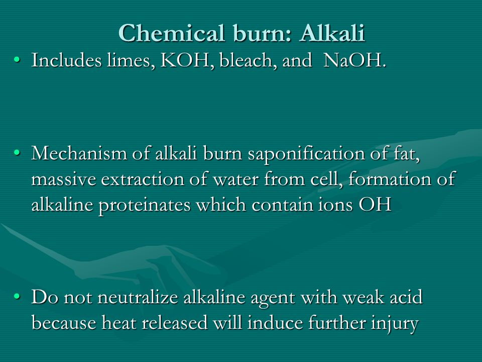 Chemical burn: Alkali Includes limes, KOH, bleach, and NaOH.Includes limes, KOH, bleach, and NaOH. Mechanism of alkali burn saponification of fat, mas