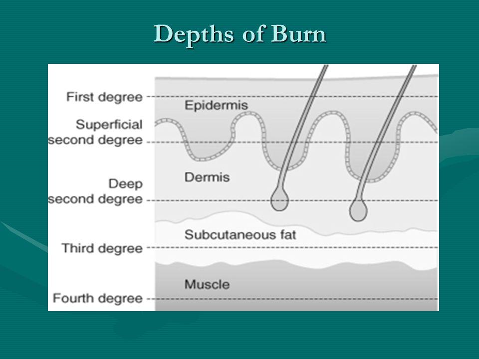 Burns Depth