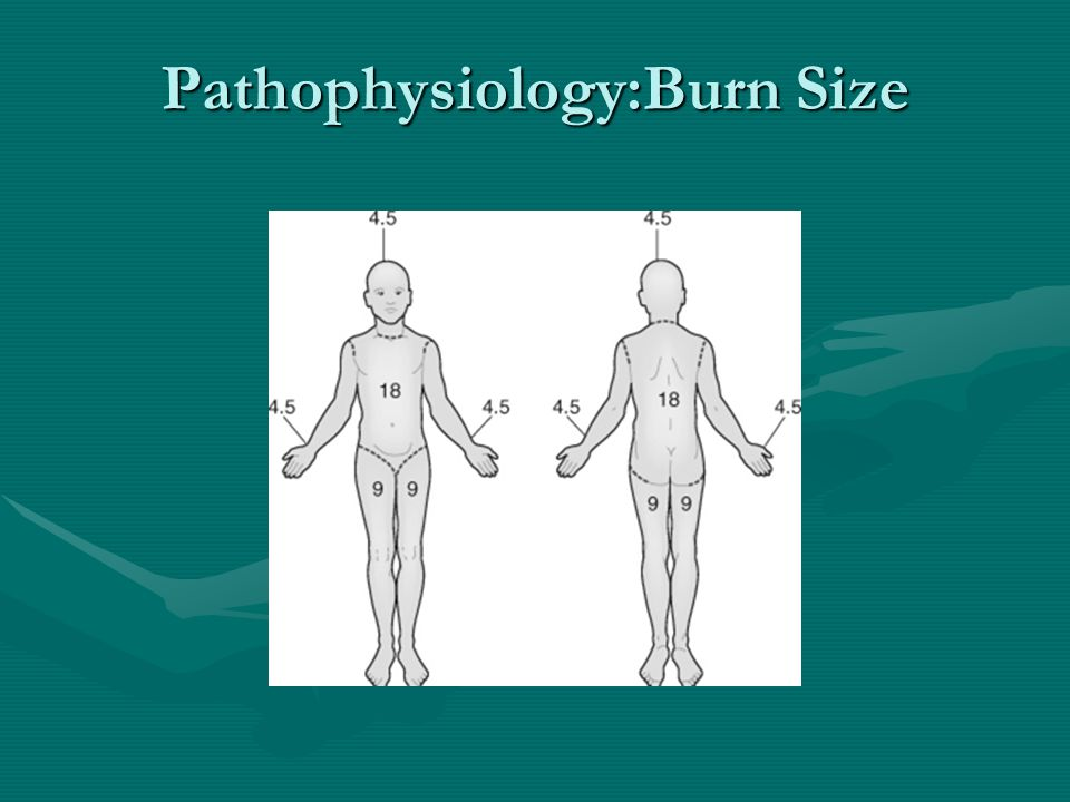 Pathophysiology:Burn Size