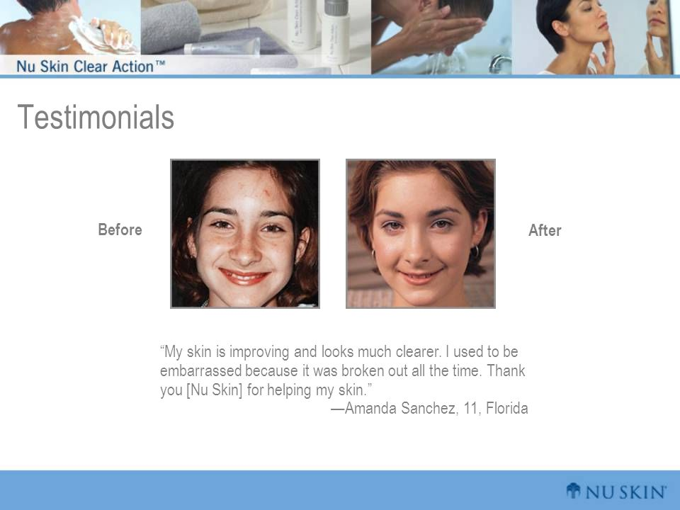 """Testimonials """"My skin is improving and looks much clearer. I used to be embarrassed because it was broken out all the time. Thank you [Nu Skin] for he"""