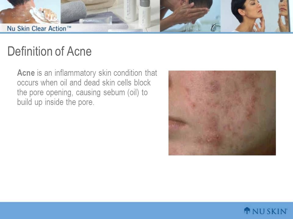 Definition of Acne Acne is an inflammatory skin condition that occurs when oil and dead skin cells block the pore opening, causing sebum (oil) to build up inside the pore.