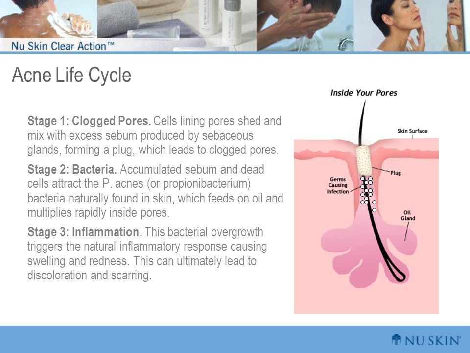 Acne Life Cycle Stage 1: Clogged Pores. Cells lining pores shed and mix with excess sebum produced by sebaceous glands, forming a plug, which leads to