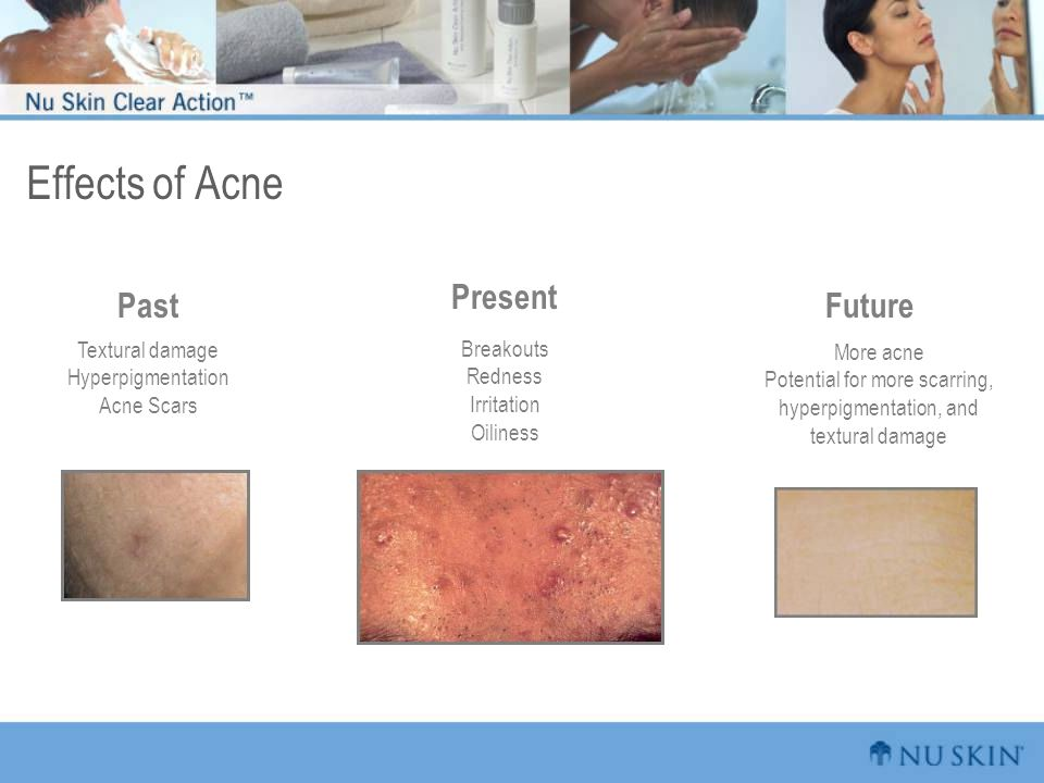 Past Textural damage Hyperpigmentation Acne Scars Present Breakouts Redness Irritation Oiliness Future More acne Potential for more scarring, hyperpigmentation, and textural damage Effects of Acne