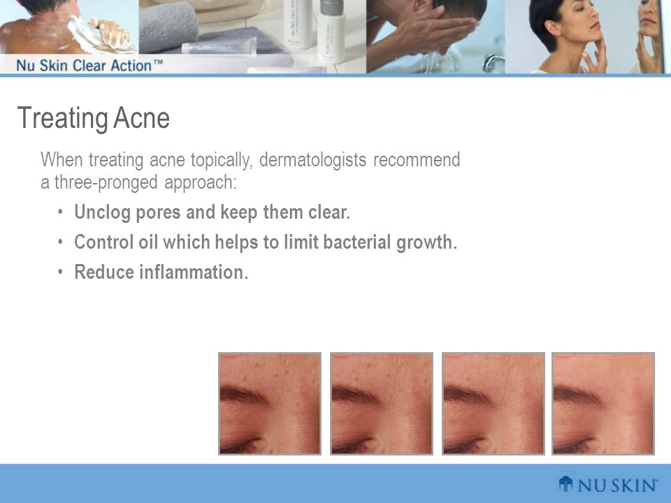 Treating Acne When treating acne topically, dermatologists recommend a three-pronged approach: Unclog pores and keep them clear. Control oil which hel