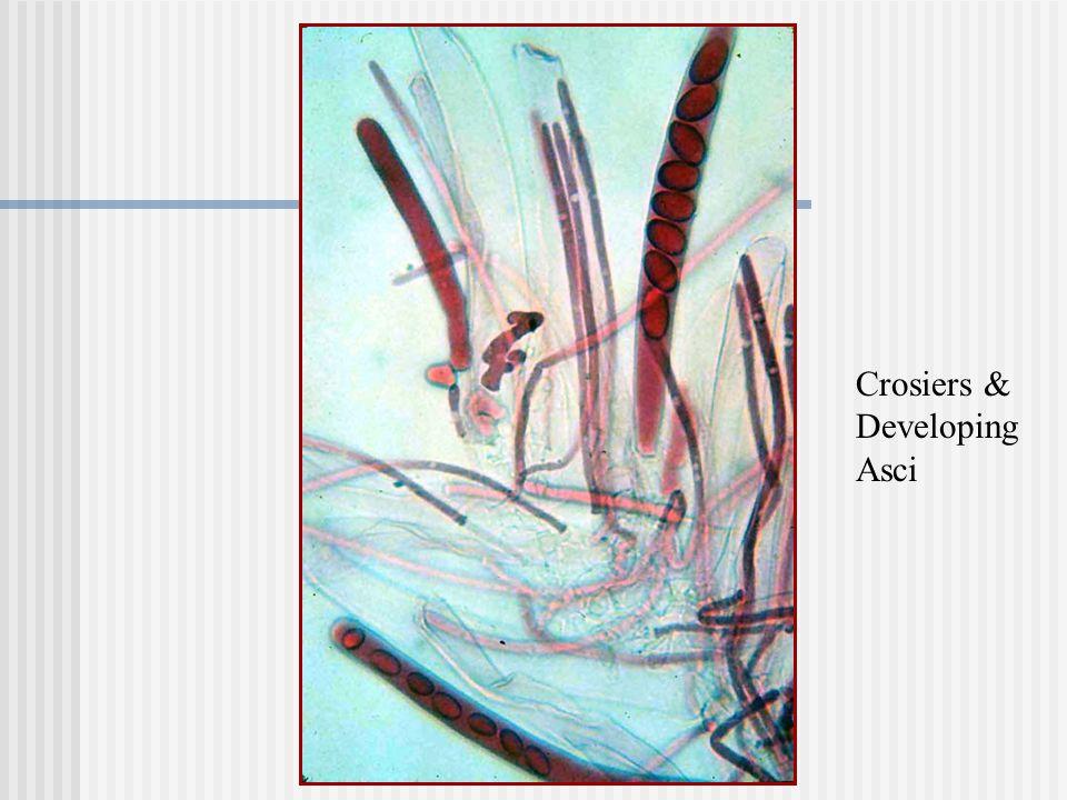 Crosiers & Developing Asci