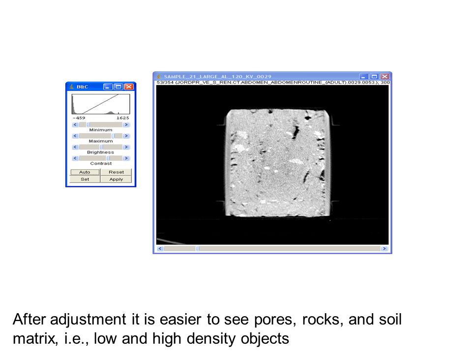 After adjustment it is easier to see pores, rocks, and soil matrix, i.e., low and high density objects