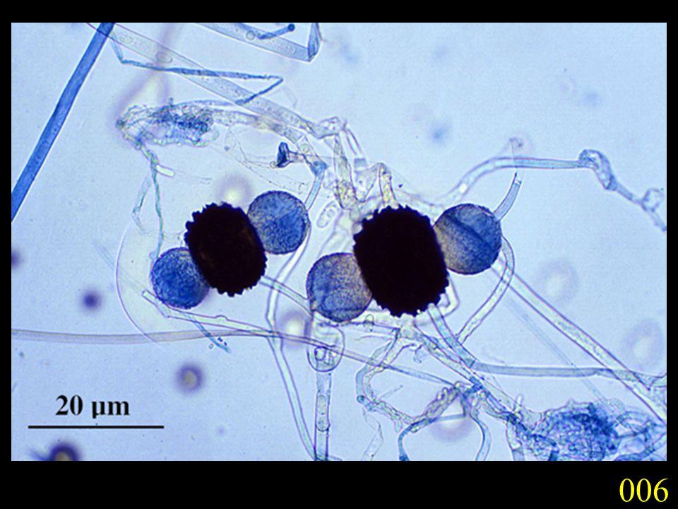 Saprobes, parasites (especially of plants), or lichen forming, mostly terrestrial; cosmopolitan (32,267 species).
