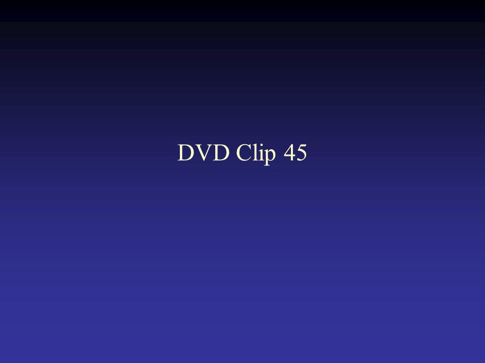 DVD Clip 45