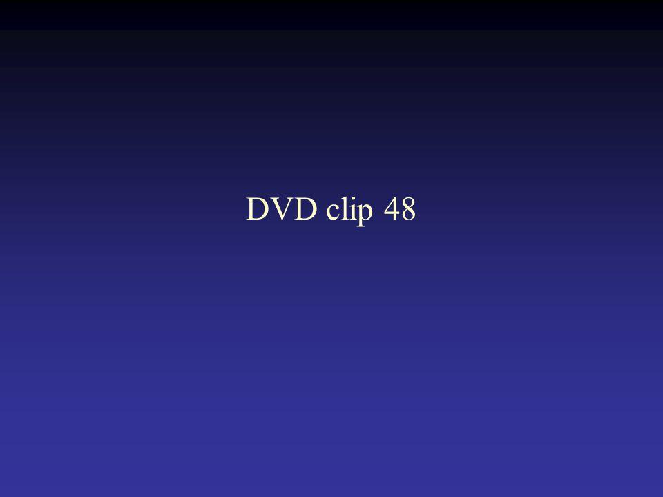 DVD clip 48