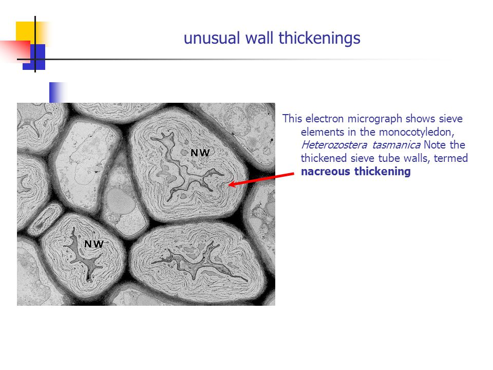 unusual wall thickenings This electron micrograph shows sieve elements in the monocotyledon, Heterozostera tasmanica Note the thickened sieve tube wal