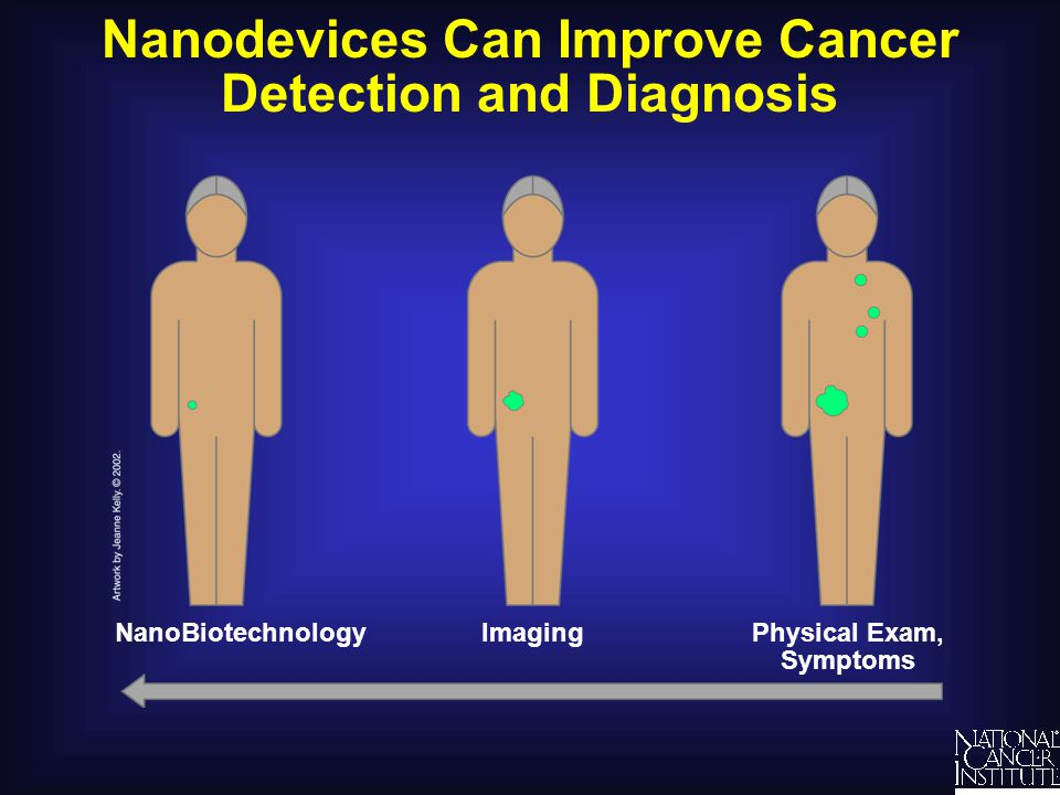 Nanodevices Can Improve Cancer Detection and Diagnosis ImagingNanoBiotechnologyPhysical Exam, Symptoms