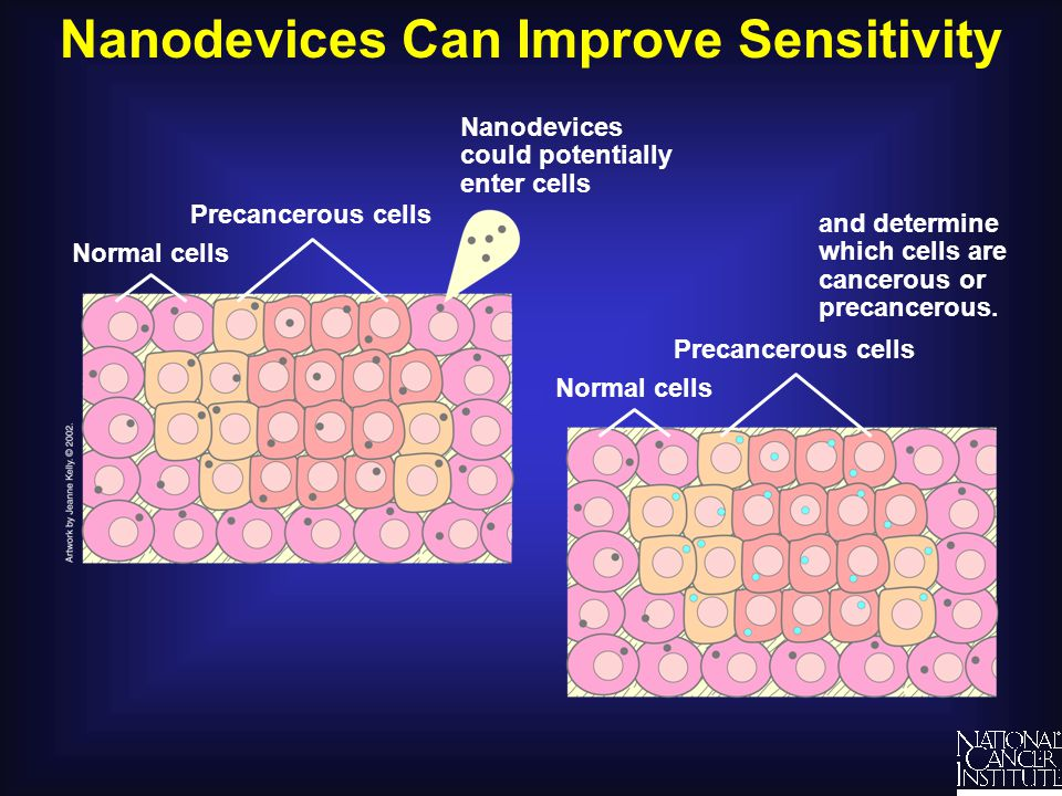 Nanodevices Can Improve Sensitivity and determine which cells are cancerous or precancerous.