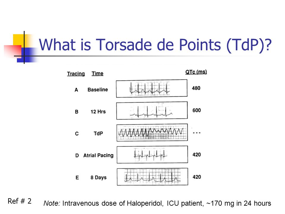 What is Torsade de Points (TdP).
