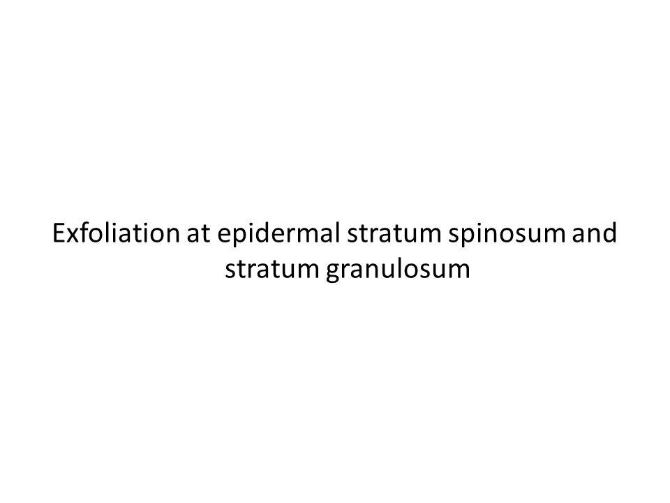 Exfoliation at epidermal stratum spinosum and stratum granulosum