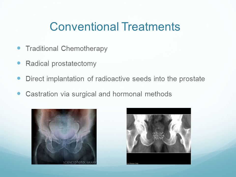 Conventional Treatments Traditional Chemotherapy Radical prostatectomy Direct implantation of radioactive seeds into the prostate Castration via surgical and hormonal methods