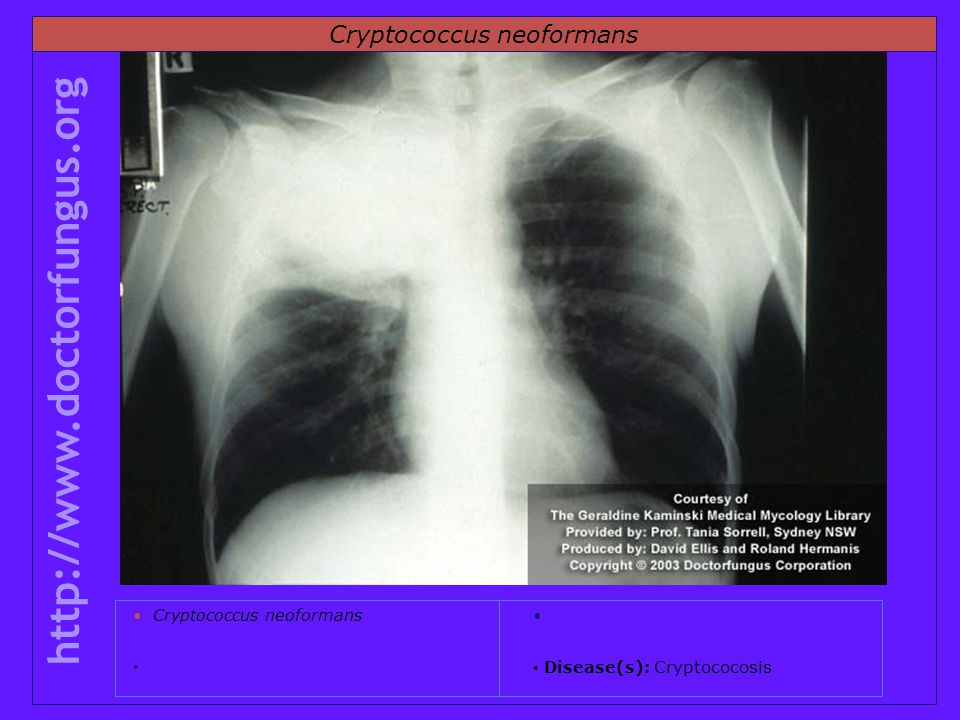 Cryptococcus neoformans http://www.doctorfungus.org Cryptococcus neoformans Disease(s): Cryptococosis