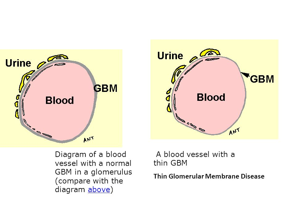 Diagram of a blood vessel with a normal GBM in a glomerulus (compare with the diagram above)above A blood vessel with a thin GBM Thin Glomerular Membrane Disease