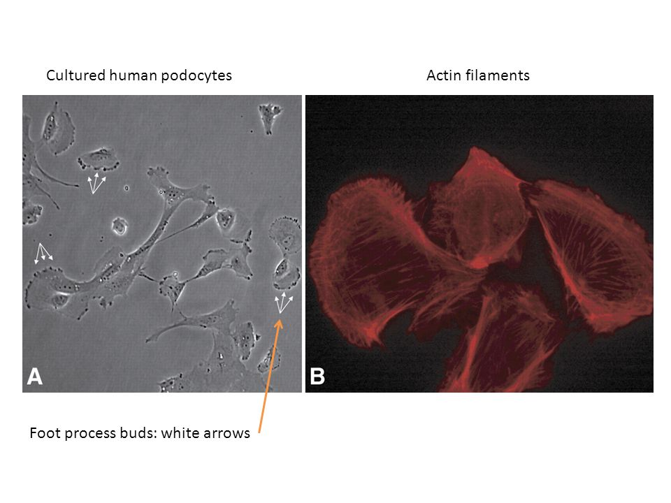 Foot process buds: white arrows Actin filamentsCultured human podocytes