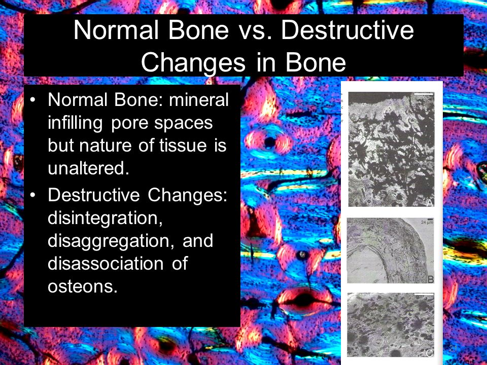 Normal Bone vs.
