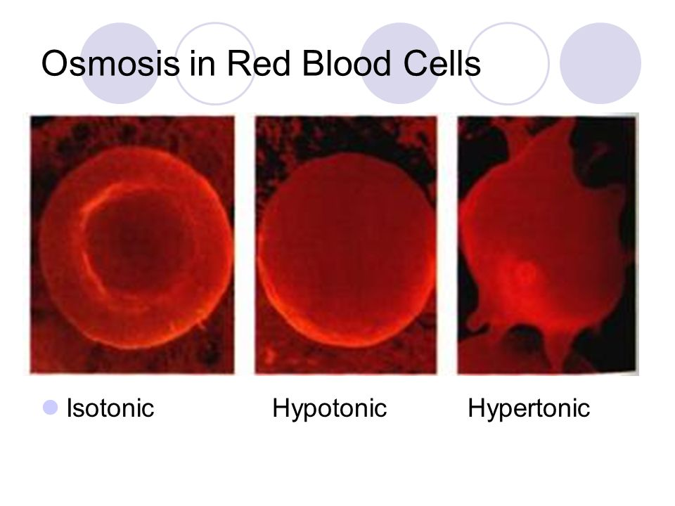 Osmosis in Red Blood Cells Isotonic Hypotonic Hypertonic