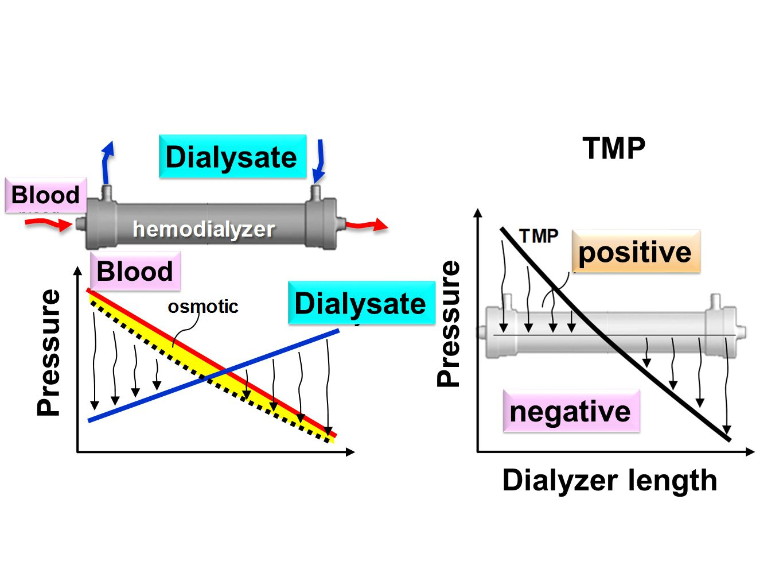Dialyzer length Pressure positive TMP negative Pressure Blood Dialysate Blood