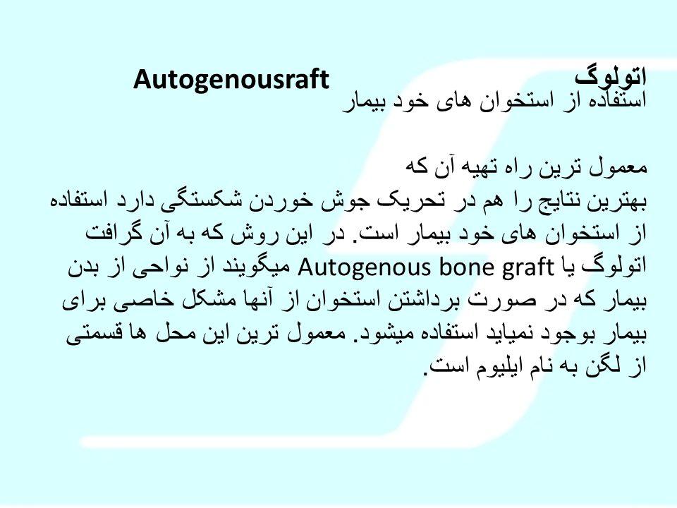 اتولوگ Autogenousraft استفاده از استخوان های خود بیمار معمول ترین راه تهیه آن که بهترین نتایج را هم در تحریک جوش خوردن شکستگی دارد استفاده از استخوان