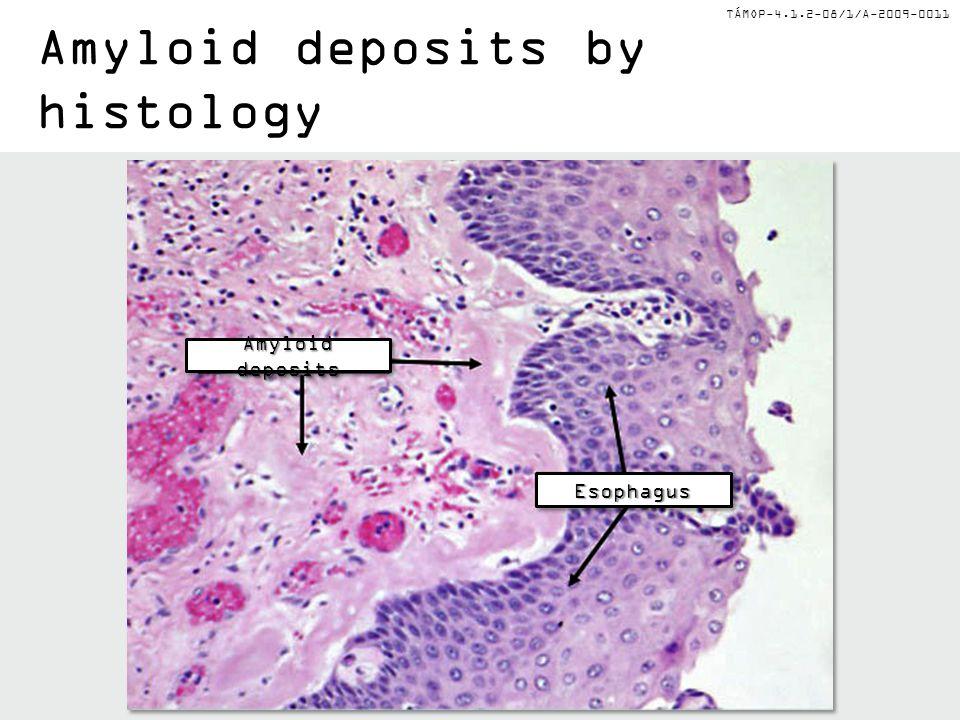TÁMOP-4.1.2-08/1/A-2009-0011 Amyloid deposits by histology