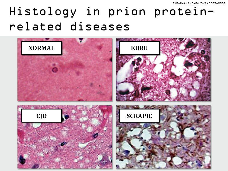 TÁMOP-4.1.2-08/1/A-2009-0011 NORMAL CJD KURU SCRAPIE Histology in prion protein- related diseases