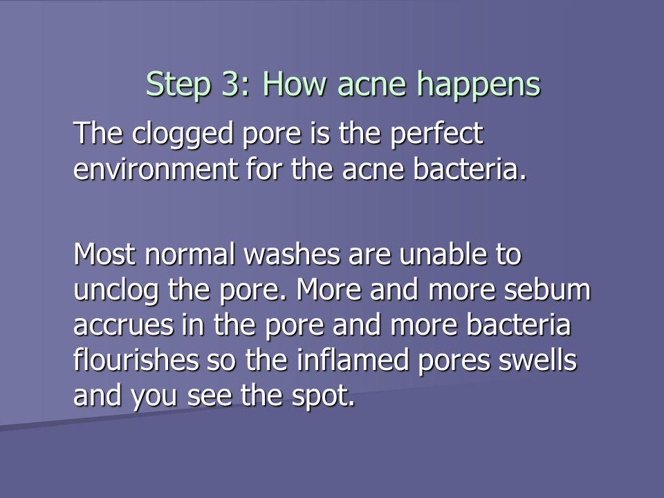 3 Steps to Beautiful Skin http://acne2diet.blogspot.com