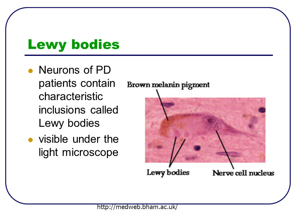 Lewy bodies Neurons of PD patients contain characteristic inclusions called Lewy bodies visible under the light microscope http://medweb.bham.ac.uk/