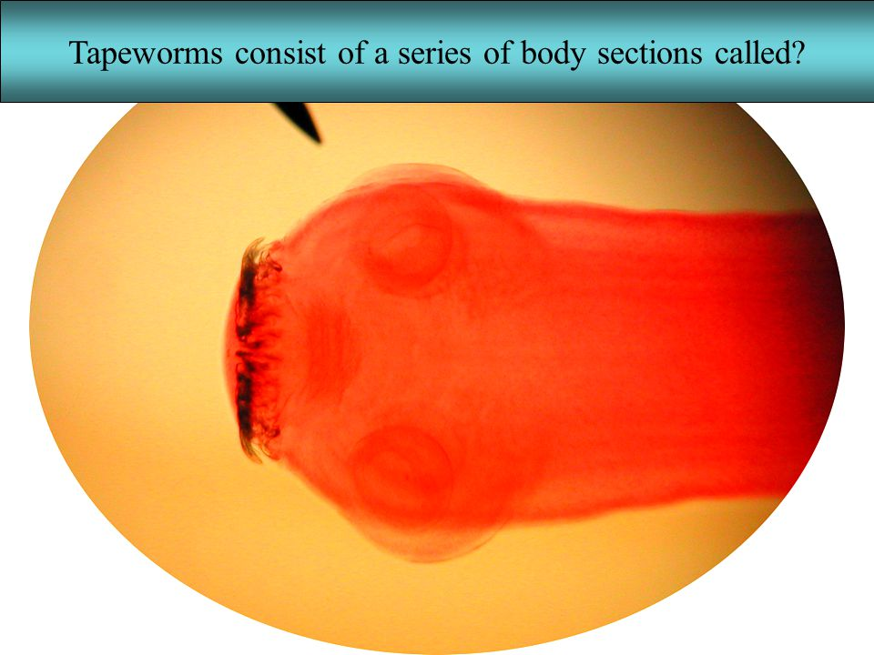 Tapeworms consist of a series of body sections called