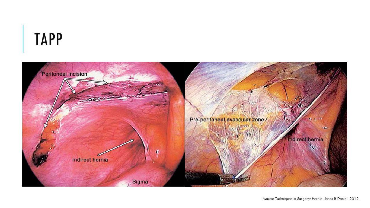 TAPP Master Techniques in Surgery: Hernia. Jones B Daniel. 2012.