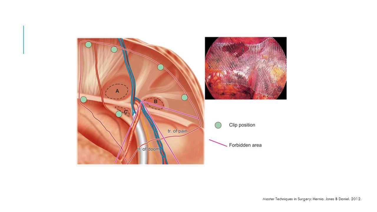 Master Techniques in Surgery: Hernia. Jones B Daniel. 2012.