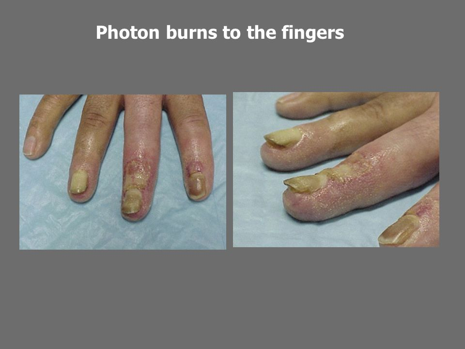 Photon burns to the fingers