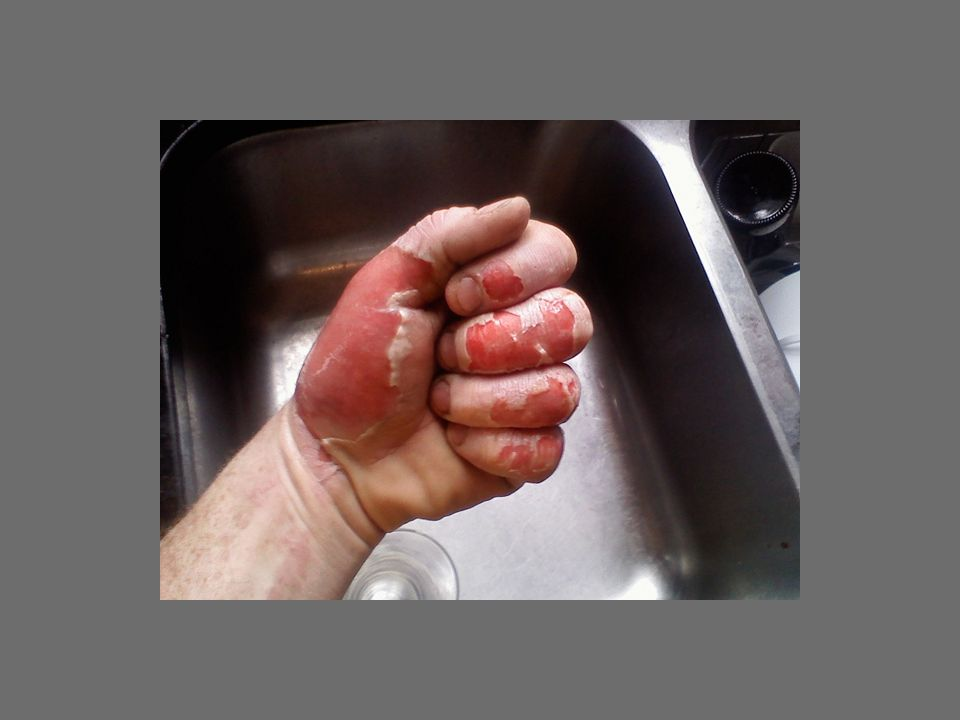 An even larger acute dose causes severe tissue damage similar to a scalding or chemical burn. Intense pain and swelling occurs, sometimes within hours