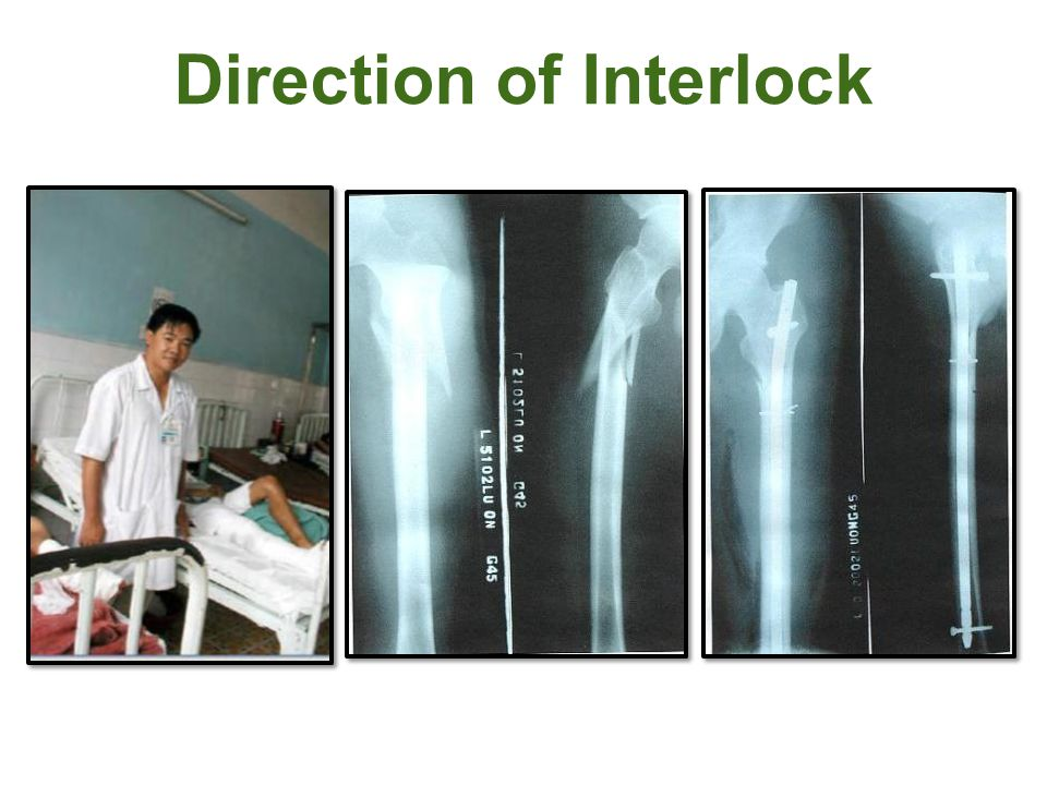 Direction of Interlock