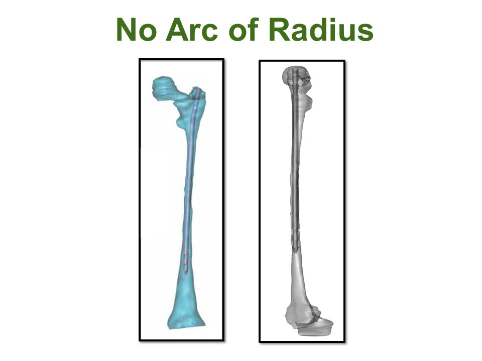 No Arc of Radius