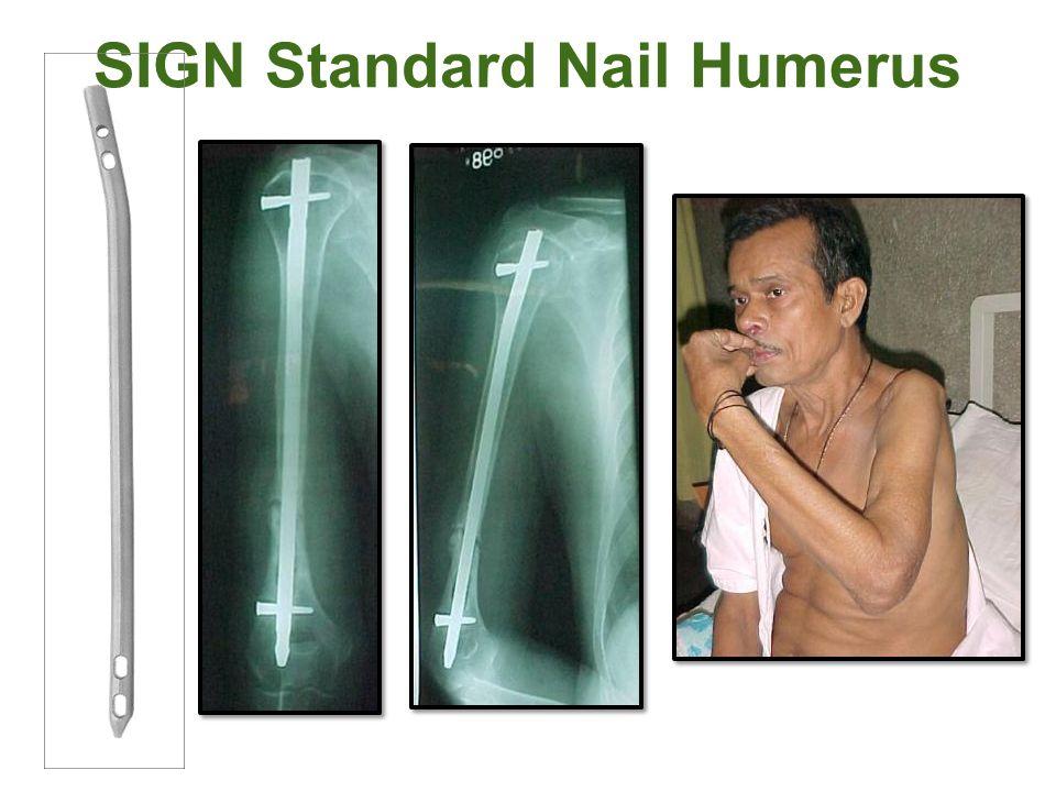 SIGN Standard Nail Humerus