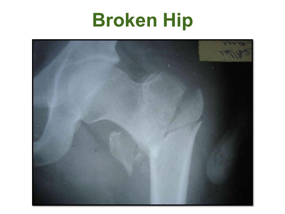 Broken Hip