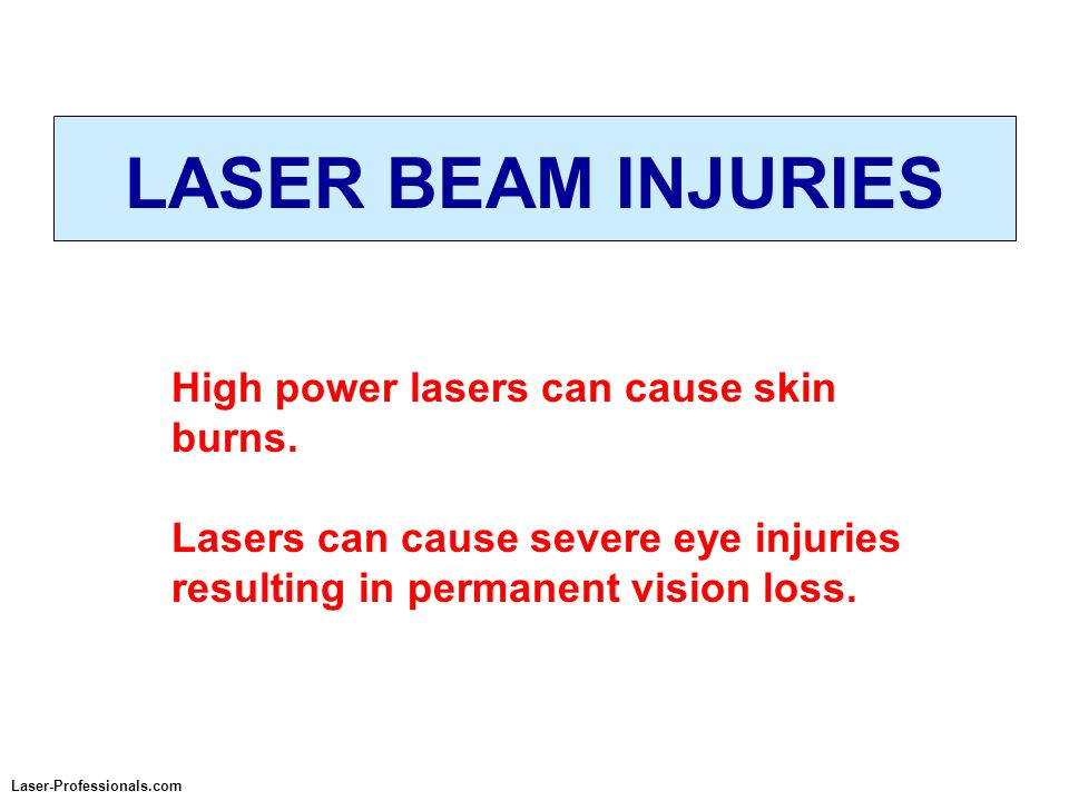 Laser-Professionals.com LASER BEAM INJURIES High power lasers can cause skin burns. Lasers can cause severe eye injuries resulting in permanent vision