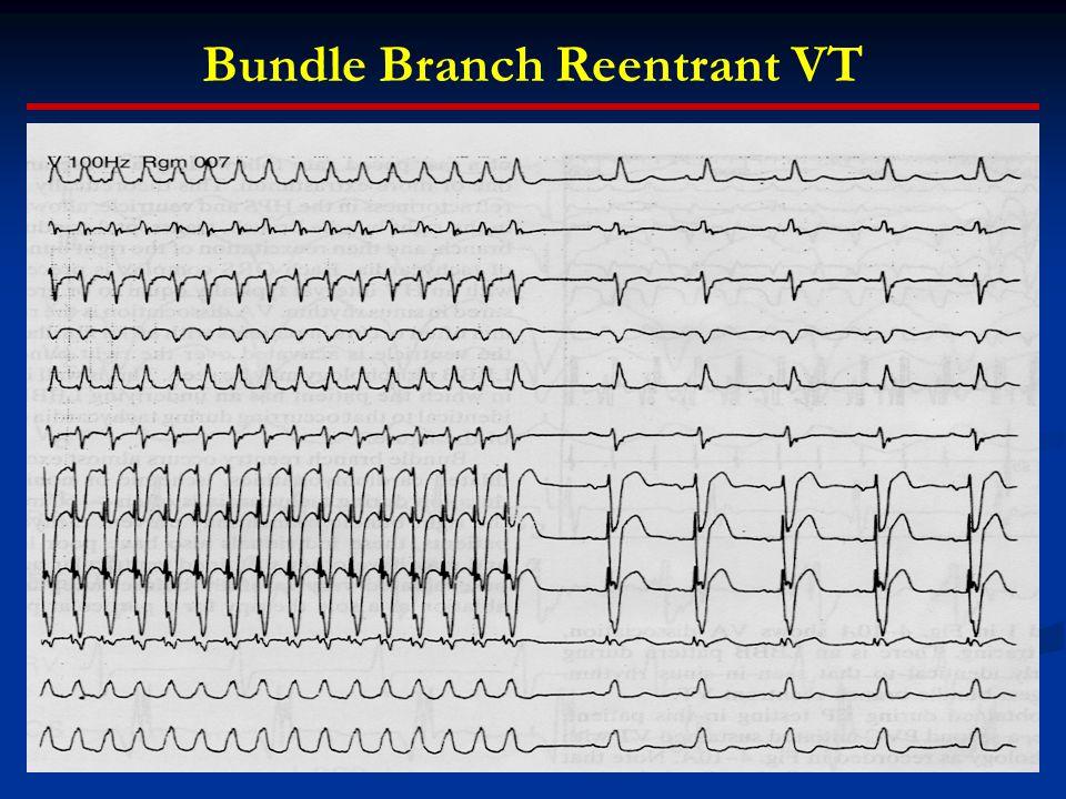 Bundle Branch Reentrant VT