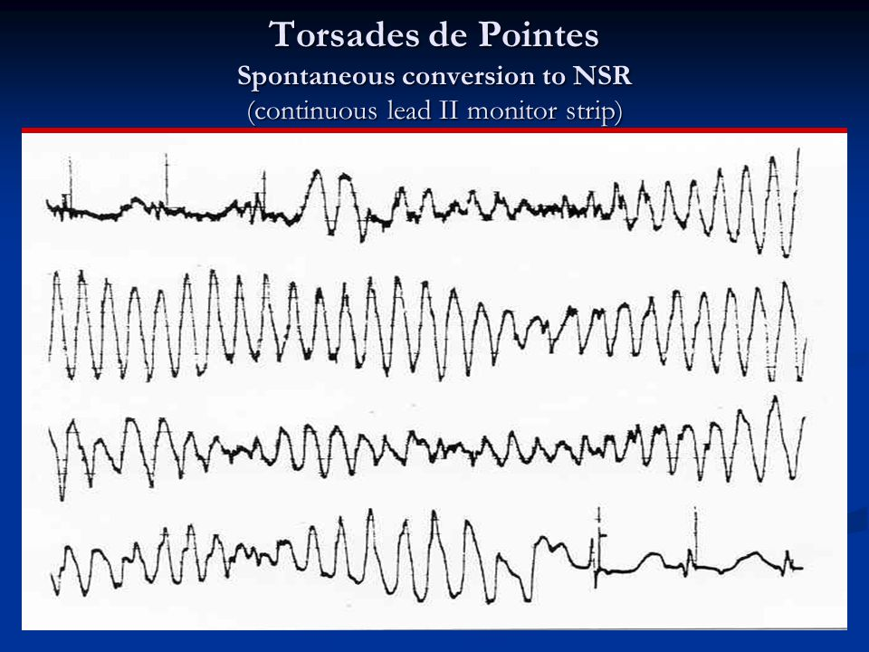 Torsades de Pointes Spontaneous conversion to NSR (continuous lead II monitor strip)