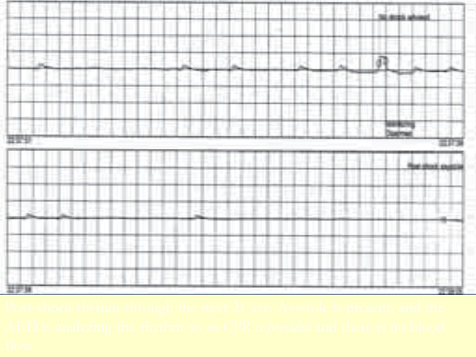 39 Post-shock rhythm through the next 21 sec. Asystole is present, and the AED is analyzing the rhythm so no CPR is provided and there is no blood flo
