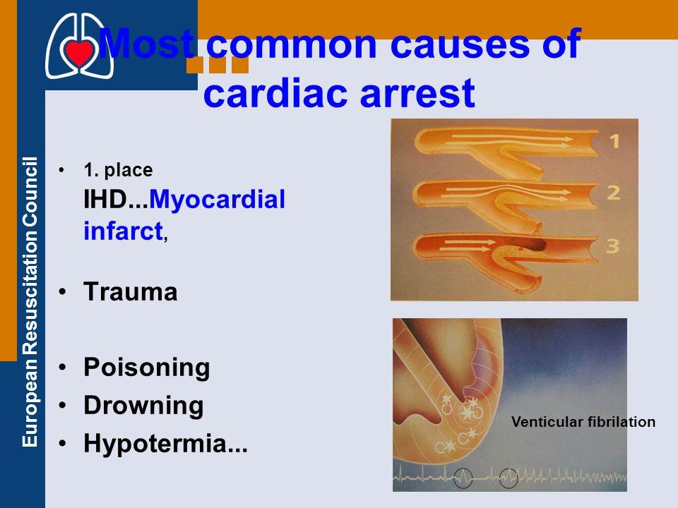 European Resuscitation Council Most frequent causes of cardiac arrest Poruchy rytmu pri AIM