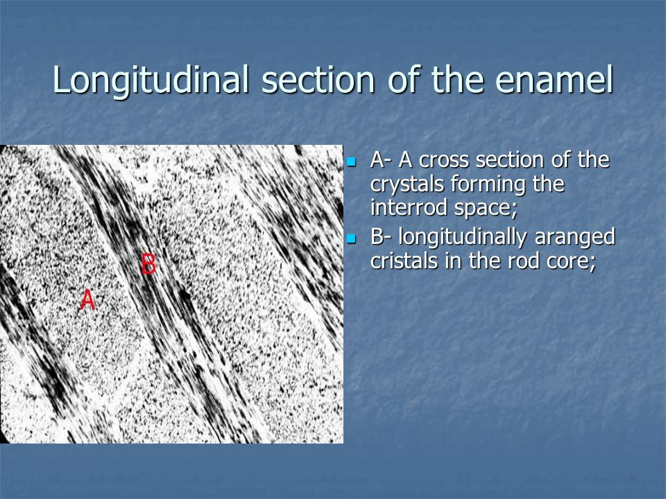 Longitudinal section of the enamel А- A cross section of the crystals forming the interrod space; А- A cross section of the crystals forming the interrod space; В- longitudinally aranged cristals in the rod core; В- longitudinally aranged cristals in the rod core;