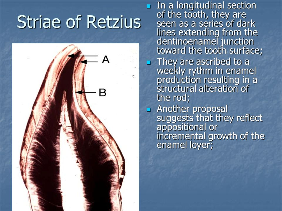 Striae of Retzius In a longitudinal section of the tooth, they are seen as a series of dark lines extending from the dentinoenamel junction toward the